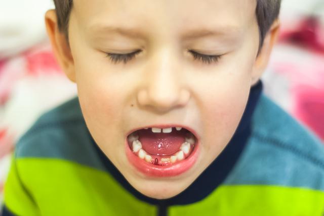 Išlėkė antras dantukas